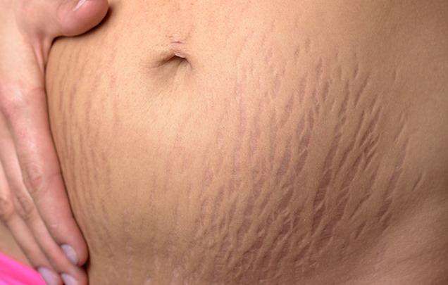 ترک بارداری